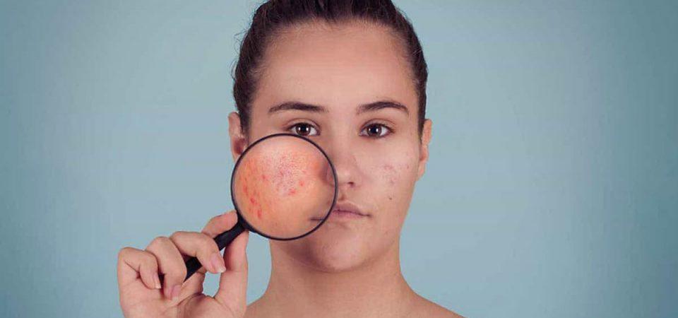 CBD gegen Akne – Wirkung, Anwendung & Erfahrungen