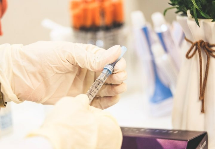 Botox-Behandlung: Der ultimative Leitfaden 2021