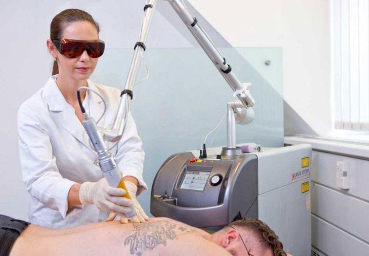Tattooentfernung mit Laser die attraktivste Behandlungsmethode